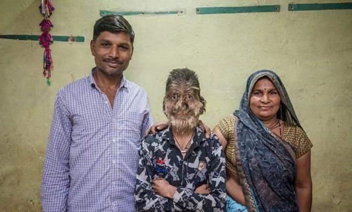 13-летний Лалит Патидар (на снимке с родителями) родился с гипертрихозом, который вызывает чрезмерный рост волос и также известен как «синдром оборотня».